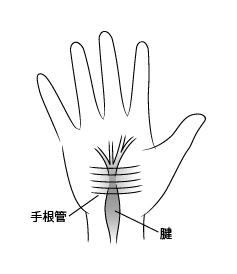 手根管症候群r-02_rev