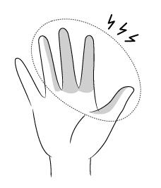 手根管症候群r-05