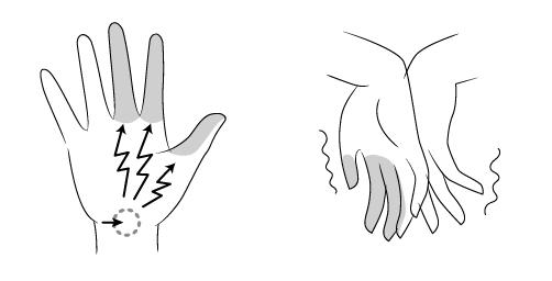 WF_手根管症候群r-03